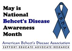 May is National Behcet's Disease Awareness Month. Art by Monkey Business Graphic Design of Pine City, NY, for ABDA.