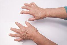 Watch This Video Extraordinary Home Remedies for Arthritis Joint Pain Ideas. Exhilarating Home Remedies for Arthritis & Joint Pain Ideas. Signs Of Arthritis, Arthritis Hands, Yoga For Arthritis, Juvenile Arthritis, Rheumatoid Arthritis Treatment, Arthritis Relief, Arthritis Remedies, Types Of Arthritis, Autoimmune Disease