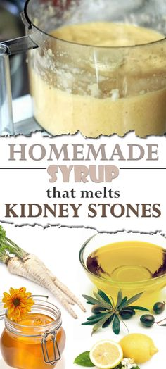 Kidney stones are accumulated mineral deposits thatform on internal organs but most of the time they can remain in the kidneys for weeks, months or even