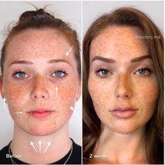 lasting dermal fillers & botox face lift & sculpting alteration. Nose Fillers, Facial Fillers, Botox Fillers, Dermal Fillers, Fillers For Face, Botox Face, Face Contouring Makeup, Botox Brow Lift, Eyebrow Lift