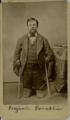 "ca. 1870, ""Benjamin Franklin"", Bailey and Magraw    [Portrait of a Civil War veteran who lost his limbs and the tip of his nose to frostbite while marching across the Dakota Territory Plains. He was the only soldier in his Company to survive]"