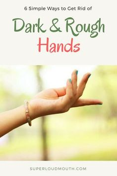How to get rid of dark and rough hands permanently care tips Rough Hands, Soft Hands, How To Get Rid, How To Remove, Charcoal Mask Benefits, Dry Skin On Feet, Cleanser For Combination Skin, Dry Skin Remedies, Natural Remedies