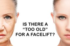 When we evaluate someone for facelift, just like any other cosmetic surgery procedure, we first have to determine whether psychologically the person is prepared for the procedure and will benefit from it in terms of self-esteem. Bbl Surgery, Mommy Makeover, Surgery Center, Tummy Tucks, Liposuction, Plastic Surgery, Self Esteem, Read More, Medicine