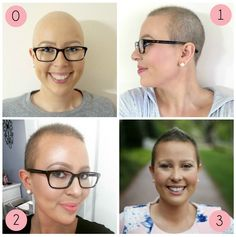 Post-Chemo Hair Styling & Growth Tips - Struggling to grow & style your short hair after chemo? Here are all the tips and products you need to grow and style your hair after chemo. Hair Growth Tips, Healthy Hair Growth, Natural Hair Growth, Hair Tips, Hair Growth After Chemo, Growing Hair After Chemo, Chemo Hair Loss, Best Hair Loss Treatment, Up Dos