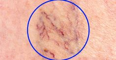 Varicose veins are a common problem in which abnormally enlarged veins appear close to the skin's surface. They usually occur in the calves and thighs