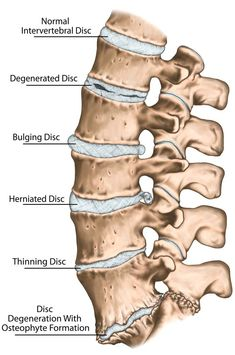 Slipped Disc in Dogs: Signs, Causes, Treatment and Prevention Cervical Disc, Lumbar Disc, Intervertebral Disc, Disk Herniation, Radiculopathy, Weight Bearing Exercises, Spinal Nerve, Degenerative Disc Disease, Dog Health Tips