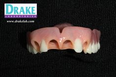Check Out CuSil from Drake...  Your Full Service Dental Laboratory. Partials / Dentures / Implants / Crown & Bridge / Bite Splints / Snore Guards www.drakelab.com