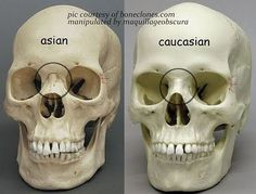 Understanding the differences between the anatomical structure of Asian eyes and Caucasian or Occidental eye shapes. Eye Anatomy, Facial Anatomy, Human Body Anatomy, Anatomy Poses, Anatomy Study, Anatomy Drawing, Anatomy Reference, Skull Anatomy, Skeleton Anatomy