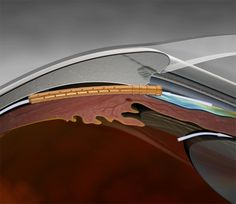 GENIO Italiano Giuseppe Cotellessa: CyPass Micro-Stent, an Implant for Glaucoma, Appro...