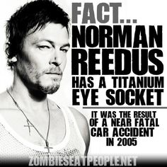 Tough as nails Reedus..made me like him even more since I have a titanium plate in my head! ROBOREEDUS!!!!