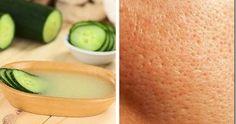 Si tienes lapiel grasaes normal que tengas el poro abierto, es por losporospor donde se segrega la grasa. En la adolescencia se tie...