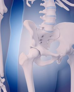 """When you have a bone density test, your result comes back as a """"T-score."""" Osteoporosis -3 means you need to take steps to boost your bone strength. http://universityhealthnews.com/daily/bones-joints/osteoporosis-3-what-your-t-score-means-for-your-bone-health/"""
