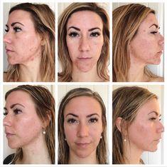17 Best Trueclear Results Images Navan Skin Care Acne Acne Breakout