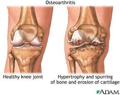 Healthy knee and arthritic knee.
