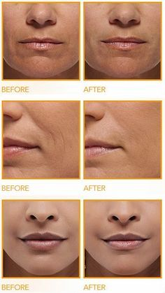 How to Get Rid of Deep Wrinkles Around the Mouth | Health Villas .