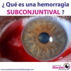 ¿¿ Qué es una hemorragia Subconjuntival ??  Esta hemorragia es similar a un hematoma normal de la piel, pareciéndose a una contusión en el ojo. Por lo general, aparece como un punto concentrado de color rojo, o muchas manchas rojas dispersas en la parte blanca del ojo. El enrojecimiento es la sangre concentrada debajo de la conjuntiva, la membrana transparente que cubre la parte blanca del ojo (esclerótica) y la parte interior del párpado.