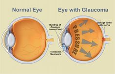 Glaucoma is an eye disease. It is a condition in which the optic nerve is damaged. Poor regulation of blood flow to the optic nerve and pressure on the eyes may Eye Stye Remedies, Home Remedies, Herbal Remedies, Health Remedies, Glaucoma Symptoms, Eye Anatomy, Human Anatomy, Natural Remedies, Eyes