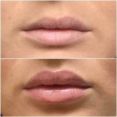 Lip plumping lip balm No stinging No needles Naturally plumps lips Natural Lip Plumper, Natural Lips, Lip Plumping Balm, Lip Balm, Anti Aging Skin Care, Cosmetics, Makeup, Health, Plump Lips