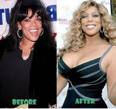 Wendy Williams Plastic Surgery Before and After - Before / After Hair Photos – Long to Short Hair Transformations Celebrities Before And After, Celebrities Then And Now, Famous Celebrities, Beautiful Celebrities, Celebs, Long To Short Hair, Short Hair Styles, Dolly Parton Plastic Surgery, Before After Hair