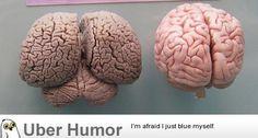Dolphin Brain vs. Human Brain