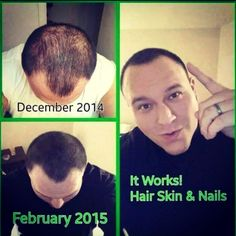 Hair, Skin & Nails from It Works  is Awesome