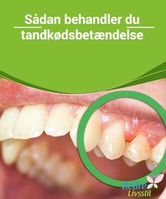 Sådan #behandler du #tandkødsbetændelse Hvis du ikke handler hurtigt, så kan plak på tænderne blive til #tandsten, som er meget vanskeligere at fjerne. Både plak og tandsted nedbryder #emaljen på vores tænder, og kan i sidste ende få #tænderne til at falde ud.