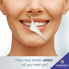 Have dazzling Smiles and let the world smile with you!! Cosmodent offering #tooth_whitening services or #bleaching_services to #restore the real shine. Contact Cosmodent at 9999354118 (#Delhi), 8867208923 (#Bangalore), 8588097530 (#Gurugram) #dentist #dental_clinic #gurgaon #laser_teeth_solution #dental_problems