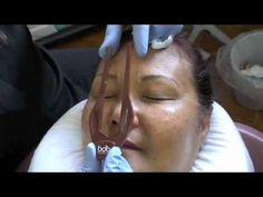 Dr. Linda Dixon does Permanent Makeup Eyebrow Correction with Hairstroke...