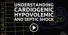 Understanding Shock - Cardiogenic, Hypovolemic, and Septic --- Do you know the difference between cardiogenic shock, hypovolemic shock, and septic shock? How does cardiogenic shock differ from the other types of shock? Nursing School Tips, Nursing Tips, Nursing Notes, Pathophysiology Nursing, Pharmacology, Ed Nurse, Nurse Life, Cardiogenic Shock, Nurse Ratchet