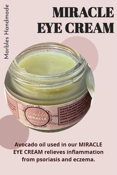 Avocado oil used in our MIRACLE EYE CREAM relieves inflammation from psoriasis and eczema. Please visit our website for more information. Miracle Eye Cream, Avocado Oil, Marbles, Dark Circles, Skincare, Website, Tips, Handmade, Hand Made