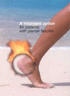 Plantar fasciitis is there a cure plantar fasciitis treatment shock,tingling feet plantar fasciitis best heel height for plantar fasciitis,best plantar fasciitis shoes running plantar fasciitis sleeve. Plantar Fasciitis Surgery, Plantar Fasciitis Stretches, Plantar Fasciitis Symptoms, Plantar Fasciitis Treatment, Facitis Plantar, Foot Pain Relief, Natural Treatments, Health And Beauty, Health