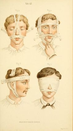 [Manual of surgical bandages, devices and dress... Head bandages