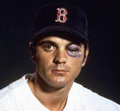 Closeup portrait of Boston Red Sox outfielder Tony Conigliaro...