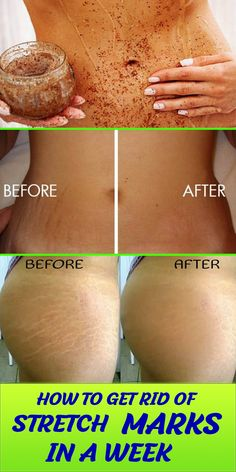 Stretch marks occur when there is a rapid change in your skin due to weight gain or growth. Stretch marks can be very embarrassing at times . Beauty Care, Beauty Skin, Beauty Hacks, Beauty Ideas, Diy Beauty, Homemade Beauty, Beauty Advice, Beauty Secrets, Beauty Guide