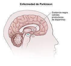 ¿Es posible prevenir o paliar la incidencia del Parkinson a través de nuestra nutrición? Los estudios nos dicen que existen una serie de alimentos que pueden ayudarnos. ¿Quieres conocerlos?