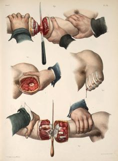 'Amputation of the arm'. Lithography with hand-colouring by Nicolas Henri Jacob from 'Traité complet de l'anatomie de l'homme' by Marc Jean Bourgery, 1839. ~~ www.facebook.com/TheIrregularAnatomist ~~ www.twitter.com/Irr_Anatomist