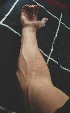 Un novio con el brazo asi porfi.