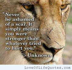 Never be ashamed of a scar - http://www.loveoflifequotes.com/inspirational/never-ashamed-scar-2/