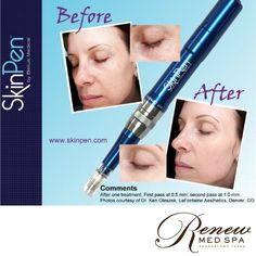 """""""SkinPen Pokes Life Back into Aging Skin""""-USATODAY.COM SkinPen is remarkably effective for scars (acne, surgical, trauma, chicken pox) fine lines and wrinkles, loss of resiliency, stretch marks, large pores, and lax skin. SkinPen features the most advanced microneedle cartridge on the market. Its unique features optimiae both the experience and results for the patient."""