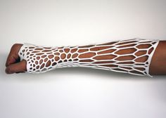 The cumbersome, heavy, and smelly plaster casts may be a thing of the past. This cast is specifically fitted to each wearer based on X-rays of the fractured bone & a 3D scan of its surrounding limb. It's a lightweight, ventilated nylon cast, and shower-friendly unlike bulky plaster casts.