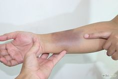 Make a Fake Bruise With Make Up - wikiHow