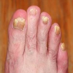 6 Excellent Home Remedies For Toenail Fungus