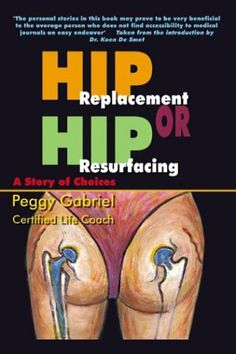 Hip Replacement or Hip Resurfacing: A Story of Choices