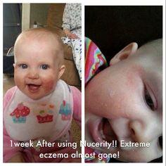 "Skincerity meringankan ruam pipi pada bayi ""One bottle one solution"""