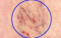 The Best Home Remedies to Get Rid of Spider Veins: May 2015 Beauty ~ What are spider veins? Spider veins, medically known as telangiectasias or angioectasias, are similar to varicose veins, but smaller. These tiny veins, found close to the surface of Get Rid Of Spider Veins, Get Rid Of Spiders, Spider Webs, Varicose Vein Remedy, Varicose Veins, Natural Home Remedies, Natural Healing, Tips Belleza, Health And Beauty Tips