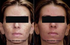 """#Skin_ageing caused by systematic #sun_exposure, facial blemishes due to excessive pigmentation and, in general, imperfections caused by melanin, are more and more common problems today… """"Dark blemishes"""", especially on hands and face, are one of the greatest aesthetic concerns of modern men and women…"""