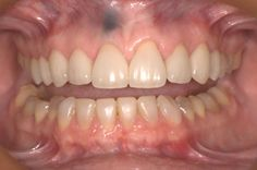 The amalgam tattoo is caused by a previous apicoectomy of the upper right central incisor.