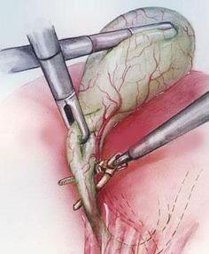 Лапароскопическая холецистэктомия. Удаление желчного пузыря при помощи проколов | Отзывы покупателей