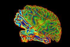 Researchers develop tools to simplify the interpretation of brain images - http://scienceblog.com/483404/researchers-develop-tools-simplify-interpretation-brain-images/