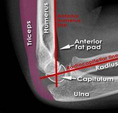 Paediatric-elbow-lines-on-XRay.png 445×426 Pixel